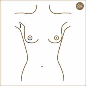 Mögliche Zugangswege bei der Brustvergrößerung