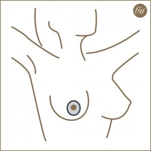 Schnittführung bei der periareolären Bruststraffung