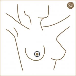 Resultierende Narbe bei der periareolären Bruststraffung