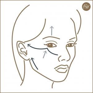 Zugrichtungen bei Straffungsoperationen im Gesicht